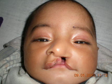 Cleft lip dating